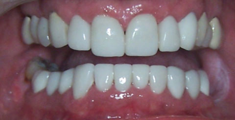 Porcelain crowns and veneers - After Open Mouth - cosmetic services