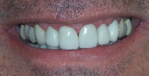 Porcelain crowns and veneers - After Smile - cosmetic services
