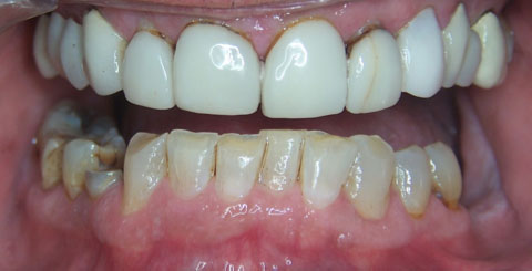 Porcelain crowns and veneers - Before Open Mouth - Cosmetic services