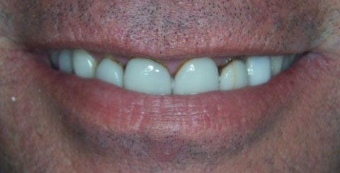 Porcelain crowns and veneers - Before Smile - Cosmetic services
